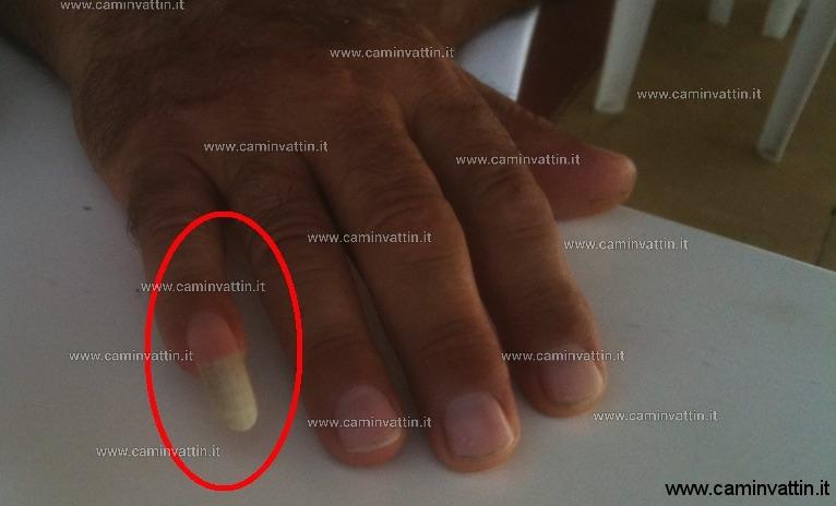 uomo con unghia del mignolo lunga